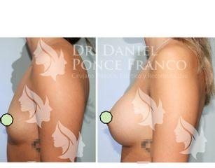Aumento de busto - Dr. Daniel Ponce Franco