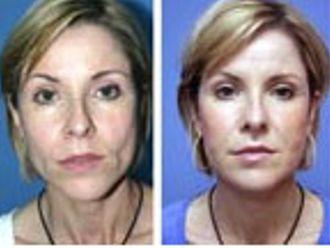 Medicina estética-205677