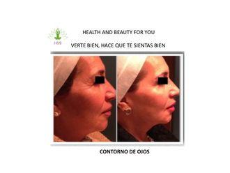 Tratamientos faciales - 539641