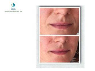 Rejuvenecimiento facial-542836