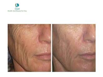 Tratamientos faciales - 542975