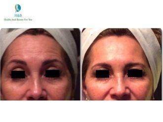 Medicina estética-543707