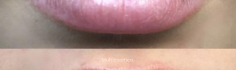 Volumen de labios