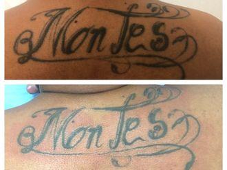 Eliminación de tatuajes-627240