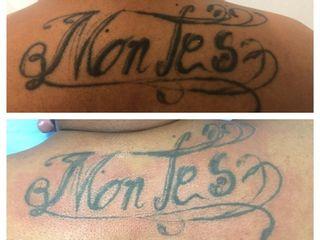 Retiro de Tatuaje