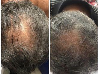 Alopecia-632742