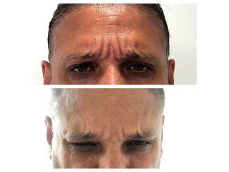 Rejuvenecimiento facial - 641077