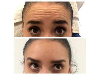 Rejuvenecimiento facial - 641078