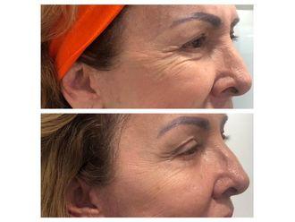 Rejuvenecimiento facial - 641079