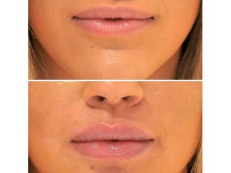 Aumento de labios - 642416