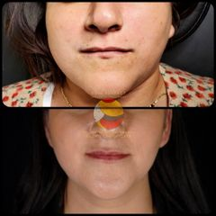 Skin Perfect By Dr. Mario Ulises Hernández García