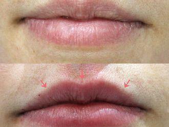 Aumento de labios-647053