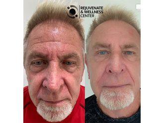 Rejuvenecimiento facial-661655