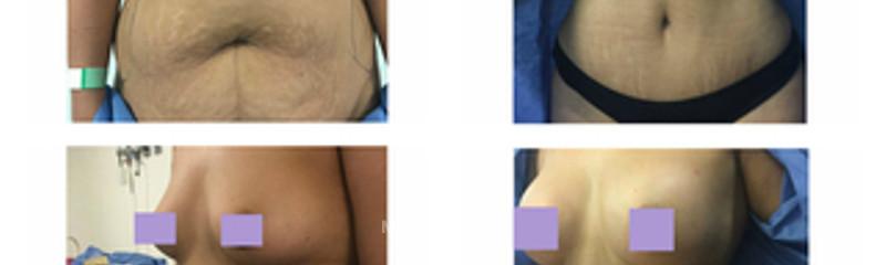 abdominoplastia y aumento de busto 3