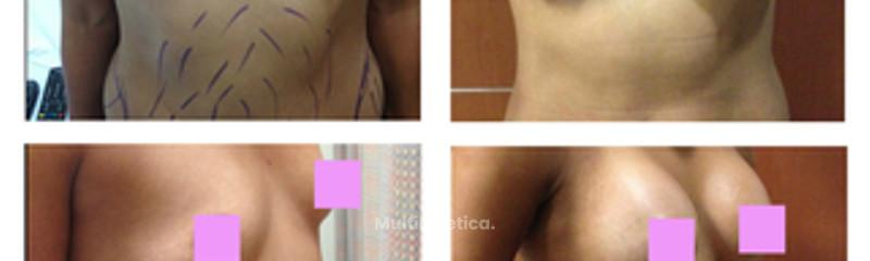 aumento de busto con liposucción 6