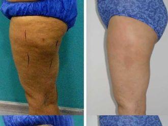 Tratamientos anticelulíticos - 630051