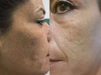 Tratamientos faciales - 630105