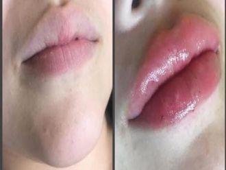 Aumento de labios-662256