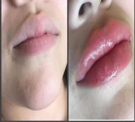 Aumento de labios - Moskalia