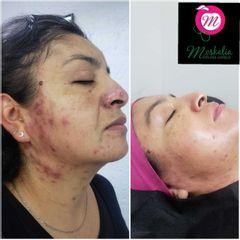 Tratamiento anti acné - Moskalia