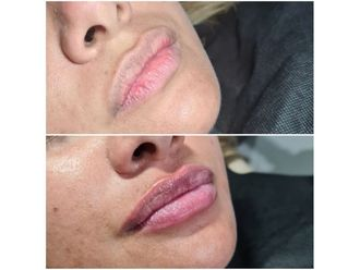 Aumento de labios-694099