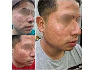 Tratamiento antiacné - Moskalia