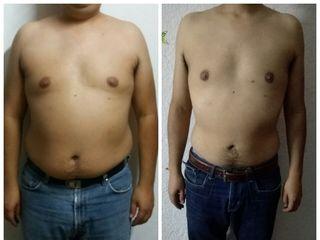 Antes y después (1 mes)