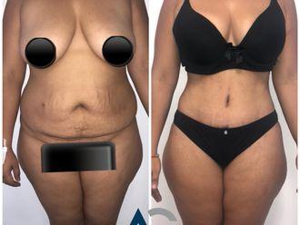Abdominoplastia-661824