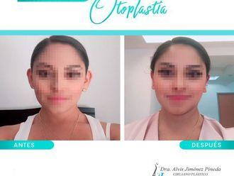 Otoplastia - 661496