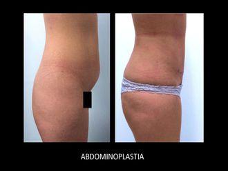 Abdominoplastia-448842