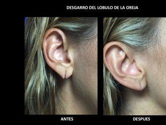 Cirugía para cicatrices - 535830