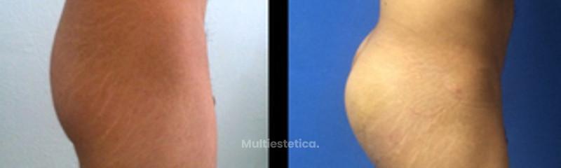 Implantes glúteos en hombre
