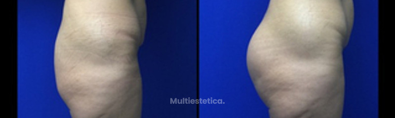 Implantes glúteos