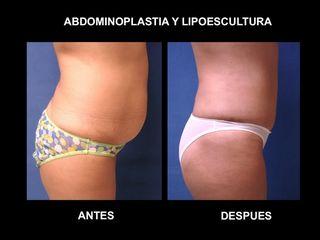Abdominoplastia y Lipoescultura