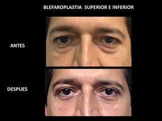 Blefaroplastia en hombre