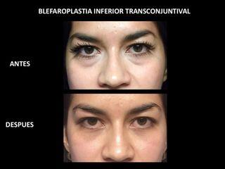 Blefaropalstia inferior transconjuntival