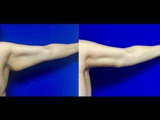 Braquioplastia izquierda Antes y después