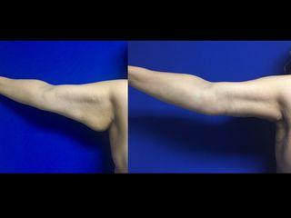 Braquioplastia derecha Antes y después
