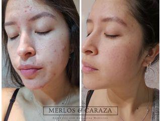 Tratamiento para acne