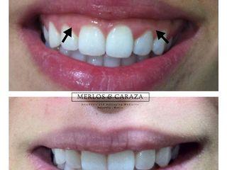 Corrección de sonrisa gingival