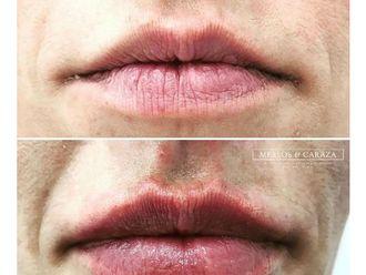 Aumento de labios-643756