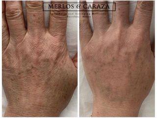 Rejuvenecimiento de manos con hidroxiapatita calcica