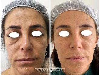Rejuvenecimiento facial - 644617