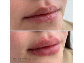 Aumento de labios-647824