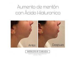 Aumento de mentón con ácido hialuronico