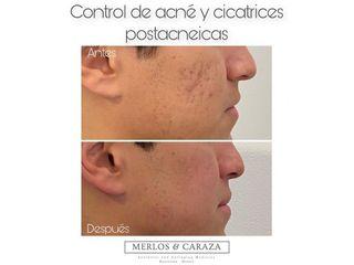 Tratamiento antiacné - Merlos & Caraza