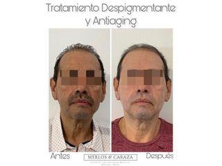 Rejuvenecimiento facial - Merlos & Caraza