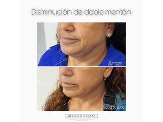 Disminución de doble mentón - Merlos & Caraza