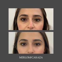 Eliminación de ojeras - Merlos & Caraza
