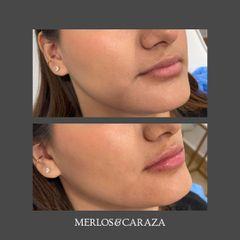 Aumento de labios - Merlos & Caraza